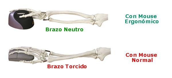 Mouse_ergonomico_EM2420_huesos_1.jpg